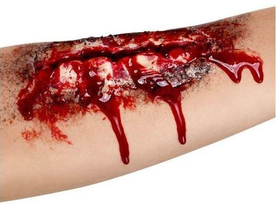 Zranění - otevřená jizva